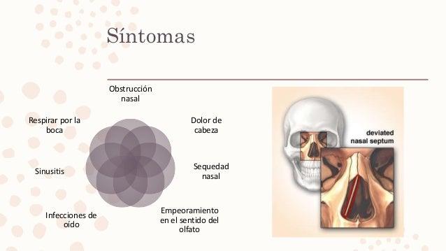 Síntomas Obstrucción nasal Dolor de cabeza Sequedad nasal Empeoramiento en el sentido del olfato Infecciones de oído Sinus...