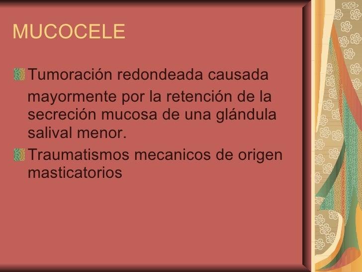 MUCOCELE <ul><li>Tumoración redondeada causada </li></ul><ul><li>mayormente por la retención de la secreción mucosa de una...