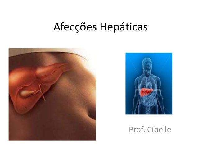 Afecções Hepáticas              Prof. Cibelle