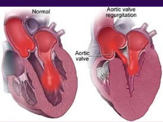 Afectiunile sistemului circulator | 638 x 479 jpeg 68kB
