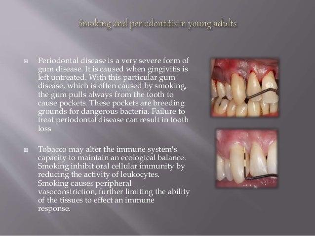 Affect of smoking on periodontium