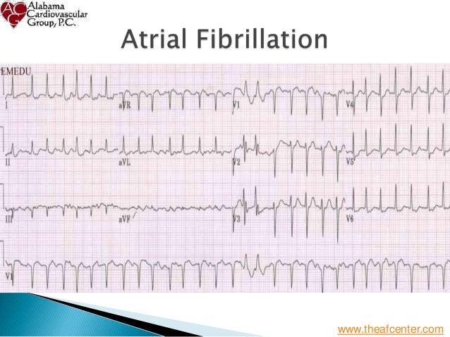 Atrial Fibrillation - From Diagnosis to Treatment - St Vincent's Birmingham Slide 2