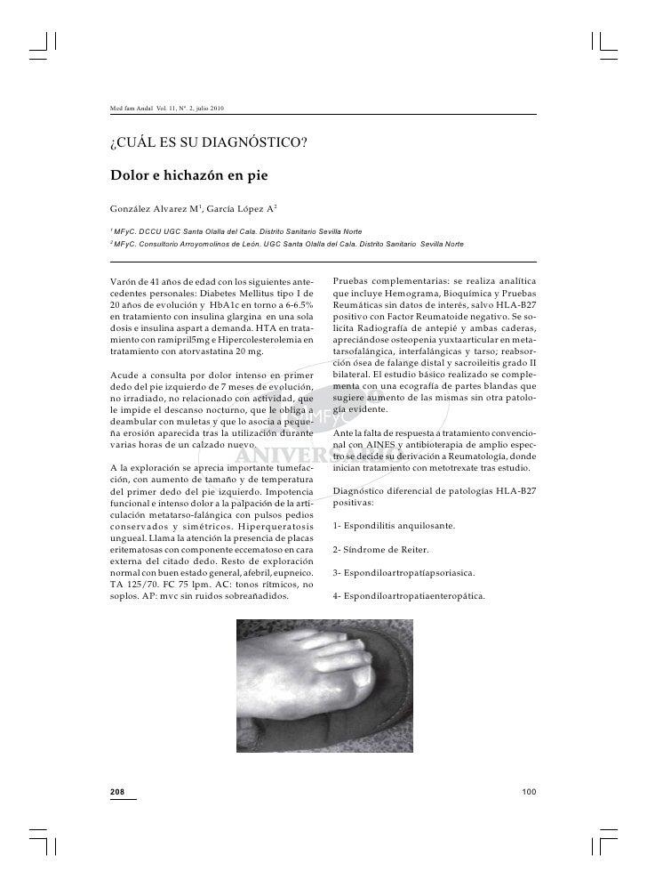 Med fam Andal Vol. 11, Nº. 2, julio 2010     ¿CUÁL ES SU DIAGNÓSTICO?  Dolor e hichazón en pie  González Alvarez M1, Garcí...