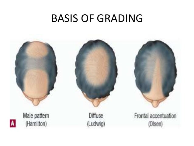 Grading Staging in Androgenetic Alopecia (Male Pattern