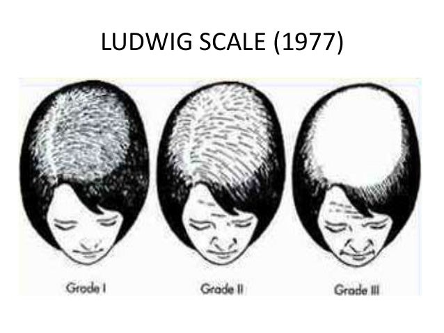 grading staging  androgenetic alopecia male pattern 638 x 479 · jpeg
