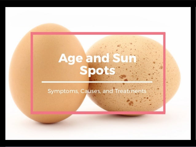 Age and Sun Spots Symptoms, Causes, and Treatments