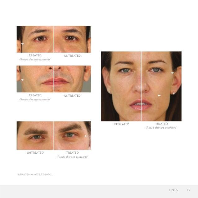 Galvanic Facial Spa 18