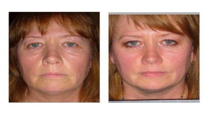 重设四大青春基因群组          3.肌肤湿度YGC 4.肌肤代谢YGC Before Treatment   After 12 weeks