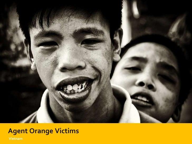 Agent Orange Victims Vietnam