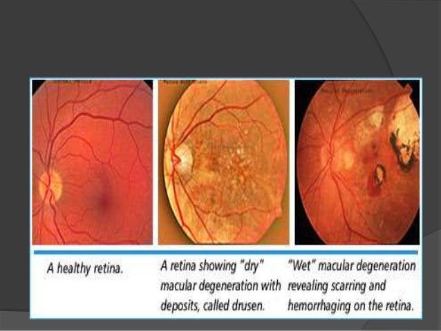 Age related macular degeneration (