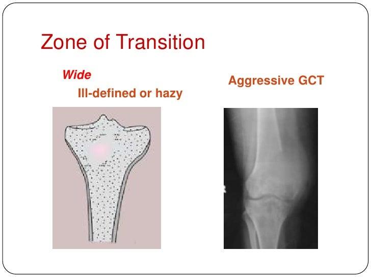 Aggressive & malignant bone tumours  an overview