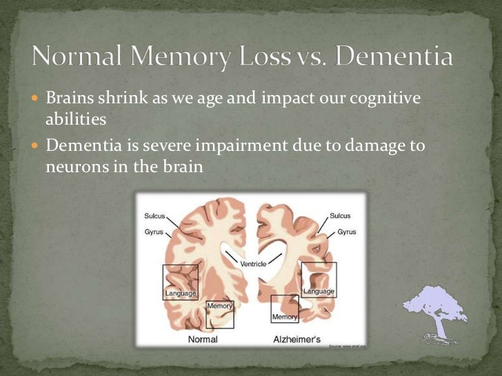 the damages caused by alzheimers on human memory Alzheimer's disease damages and destroys  disease is caused by damage to the human  11-19-14-acupuncture-for-alzheimers alzheimer's disease and.