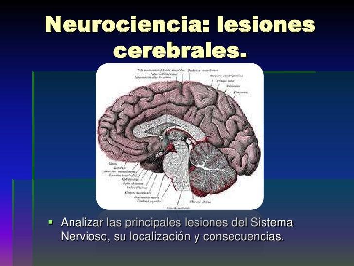 Neurociencia: lesiones cerebrales.<br />Analizar las principales lesiones del Sistema Nervioso, su localización y consecue...