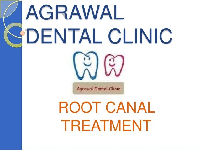 AGRAWALDENTAL CLINIC  ROOT CANAL  TREATMENT