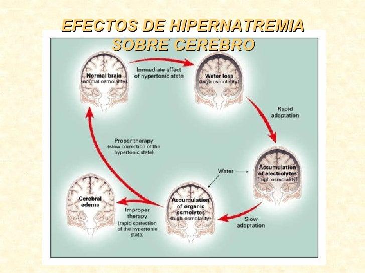 EFECTOS DE HIPERNATREMIA SOBRE CEREBRO