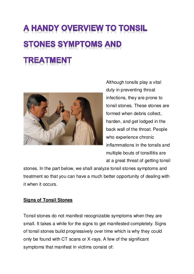 How To Treat Tonsil Stones