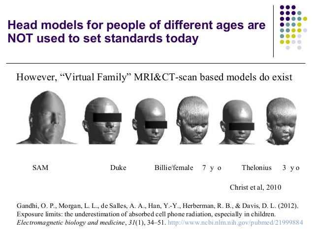 Head models for people of different ages are NOT used to set standards today SAM Duke Billie/female 7 y o Thelonius 3 y o ...