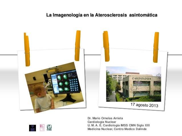 Page  1 YOUR LOGO La Imagenología en la Aterosclerosis asintomática Dr. Mario Ornelas Arrieta Cardiología Nuclear U. M. A...