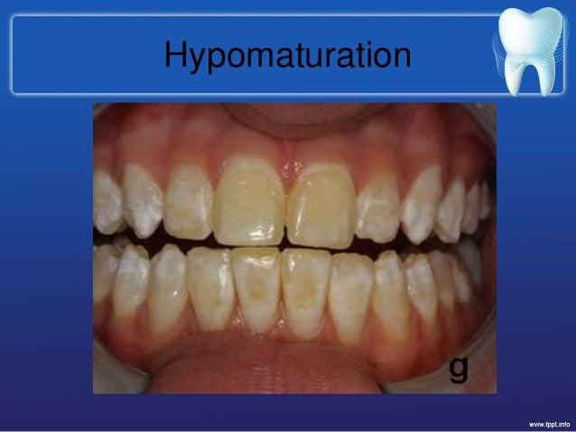 hypomaturation 19