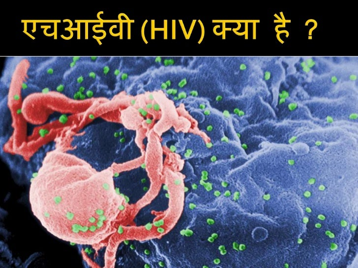 Essay on hiv aids