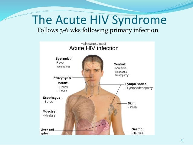 aids-related