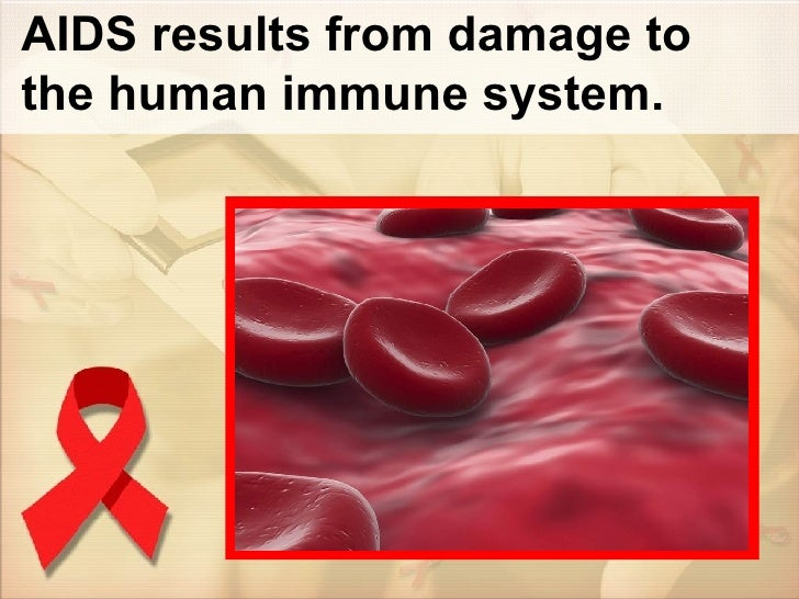 AIDS results from damage to the human immune system.