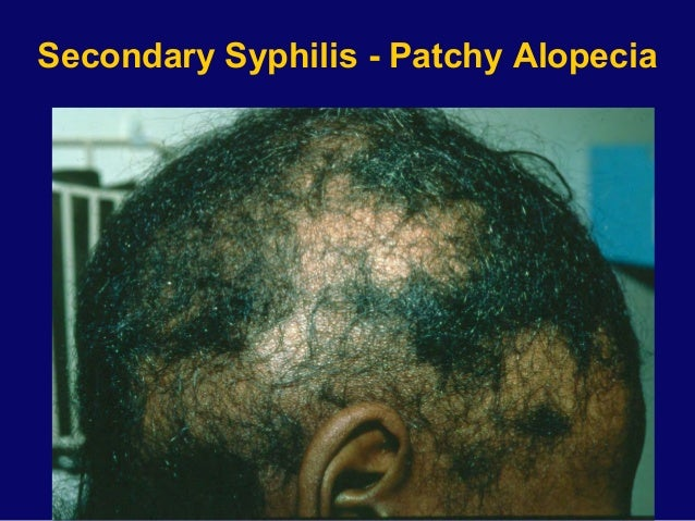syphilis the great imitator Syphilis fact sheet from cdc what is syphilis how common is syphilis how  do people get syphilis and more.