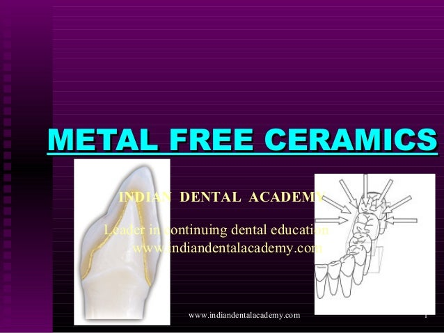 1 METAL FREE CERAMICSMETAL FREE CERAMICS INDIAN DENTAL ACADEMY Leader in continuing dental education www.indiandentalacade...