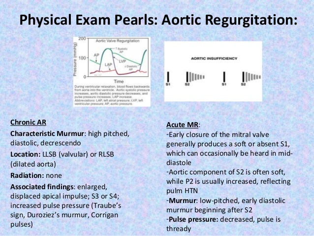 Physical Exam Pearls: Aortic Regurgitation:  Chronic AR Characteristic Murmur: high pitched, diastolic, decrescendo Locati...