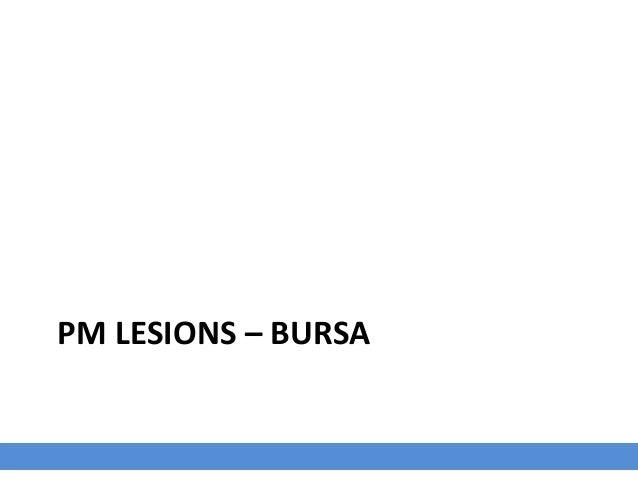 3 days P.I with HPAIV Morphologic Diagnosis Bursa of Fabricius: Moderate edema with multifocal petechia Clinical Descripti...