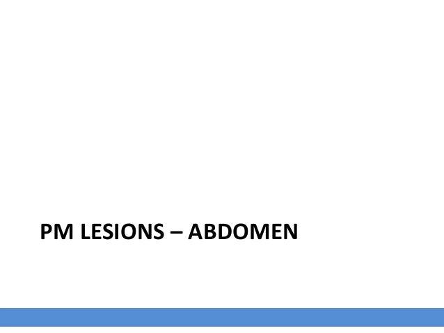 2 days P.I with HPAIV Morphologic Diagnosis Coelomic cavity: Moderate acute multifocal petechiae. Coelomic cavity: Fibrino...