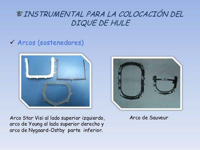 Combinaciones                         Arco y dique Quickdam y Handidam Arco y dique OptraDam