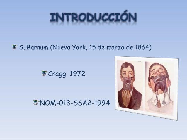 INTRODUCCIÓNS. Barnum (Nueva York, 15 de marzo de 1864)         Cragg 1972      NOM-013-SSA2-1994