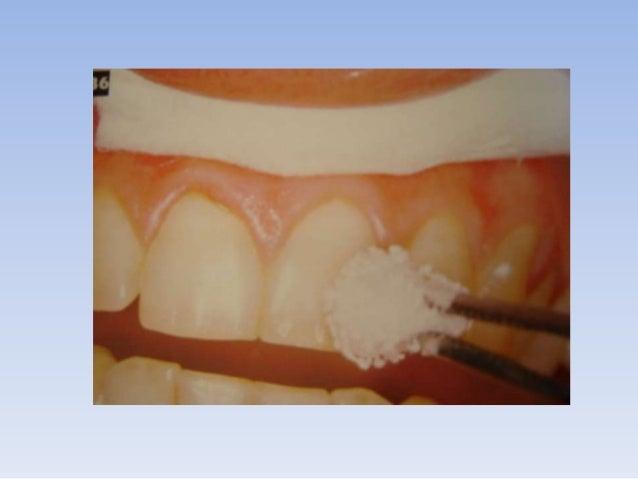 DEFINICIÓNEl aislamiento absoluto es la colocacióncorrecta del dique de hule; este debe aislarpor completo el órgano denta...