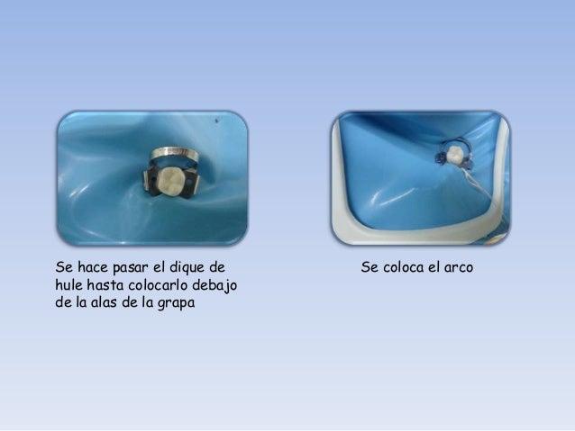 Técnica de aislamiento primero el dique.   Colocar el dique de hule      Usar hilo dental para   perforado en el diente  ...