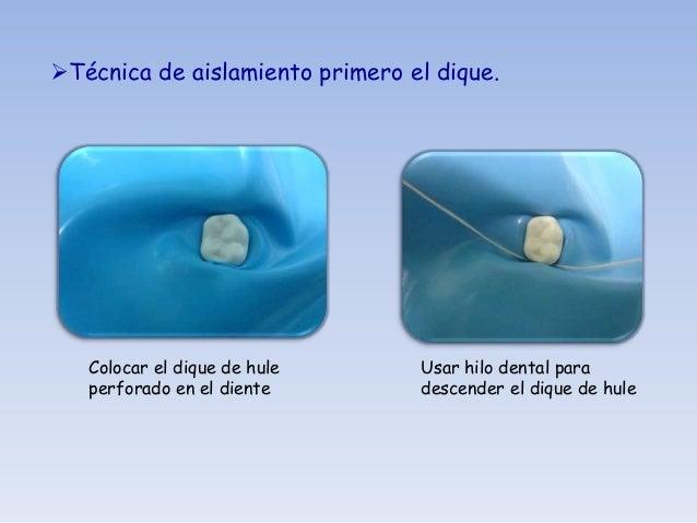 Con la pinza portagrapas          Se colca el sostenedorcolocamos la grapa en el dientea aislar
