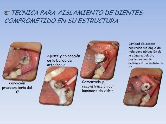 PROCEDIEMIENTOS CLINICOS EN LOS CUALESESTA RECOMENDADO EL AISLAMIENTOGENERAL DE CAMPO          Aislamiento de canino a can...