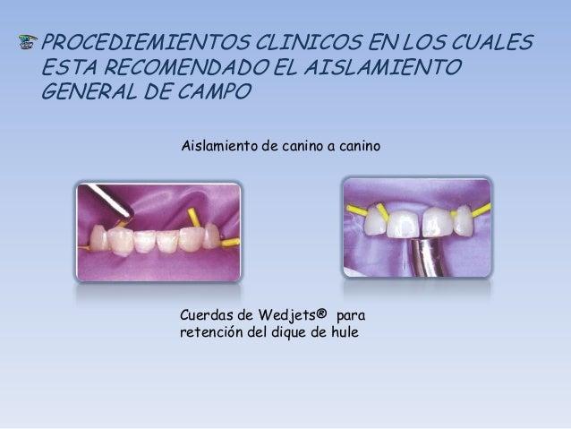PROCEDIMIENTOS CLINICOS EN LOS CUELESESTA RECOMENDADO EL AISLAMIENTOGENERAL DEL CAMPO   Aislamiento en pónticos y dientes ...