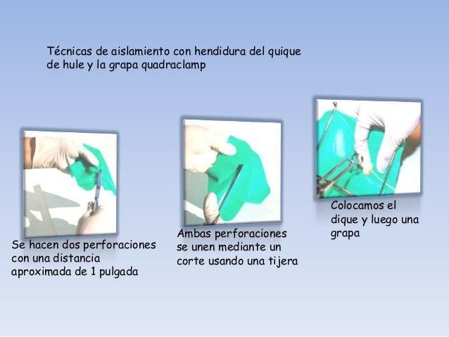 Retiro de la grapaconvencional y estiramiento   Colocación de ladel dique de hule             grapa quadraclamp   Grapa qu...