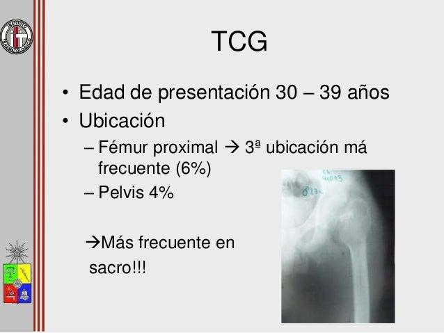 Tumores Benignos Osteoma osteoide Condroblastoma TCG Osteocondroma Osteoblastoma
