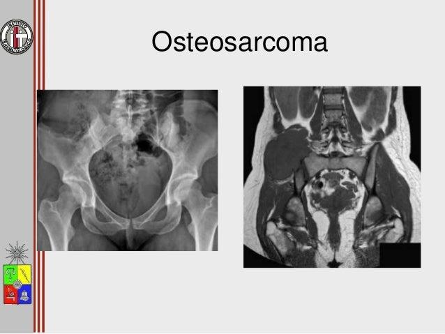Osteosarcoma • Tratamiento – Similar a otros segmentos – Menor respuesta a quimioterapia – Mucha morbilidad en la resecció...