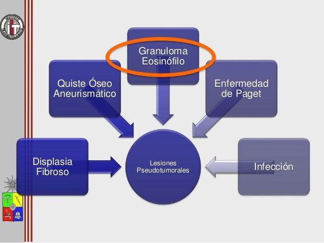 Granuloma Eosinófilo • Ubicación – 13% hueso ilíaco – 13% fémur proximal