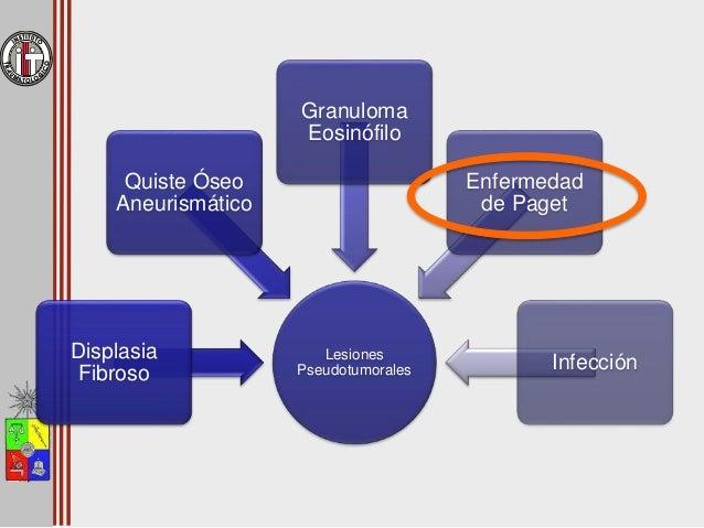 Enfermedad de Paget • Fémur proximal y pelvis son una de la ubicaciones + frecuente • Fase lítica  tumor lítico • Fase mi...