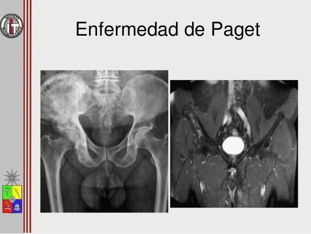 Lesiones Pseudotumorales Displasia Fibroso Quiste Óseo Aneurismático Granuloma Eosinófilo Enfermedad de Paget Infección