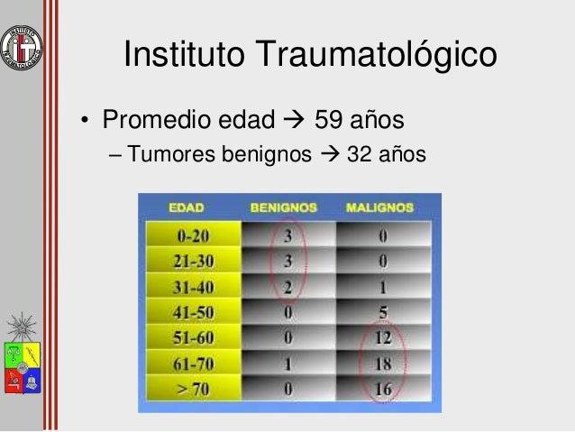 """""""Tumores frecuentes en ubicación rara es más frecuente que tumores infrecuentes en ubicación común"""""""