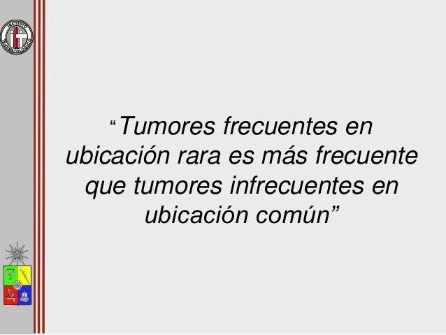 Tumores Óseos en Relación a la Cadera