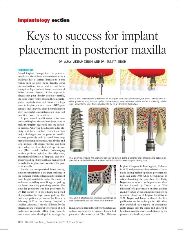 Dental Practice // March-April 2013 // Vol 11 No 500 Keys to success for implant placement in posterior maxilla implantolo...