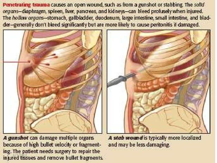 Image result for Stomach and Small Bowel Injuries