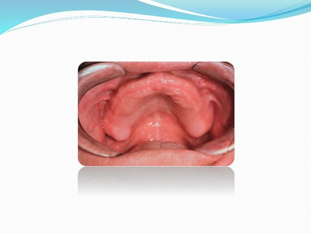 Hard Palate - •The hard palate is made up of the anterior two- thirds of the palatal vault supported by bone (palatine pro...