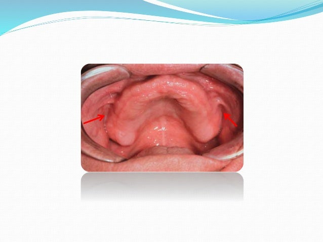 Significance : 1) It maintains contact of denture with soft tissue during functional movements of stomatognathic system (m...